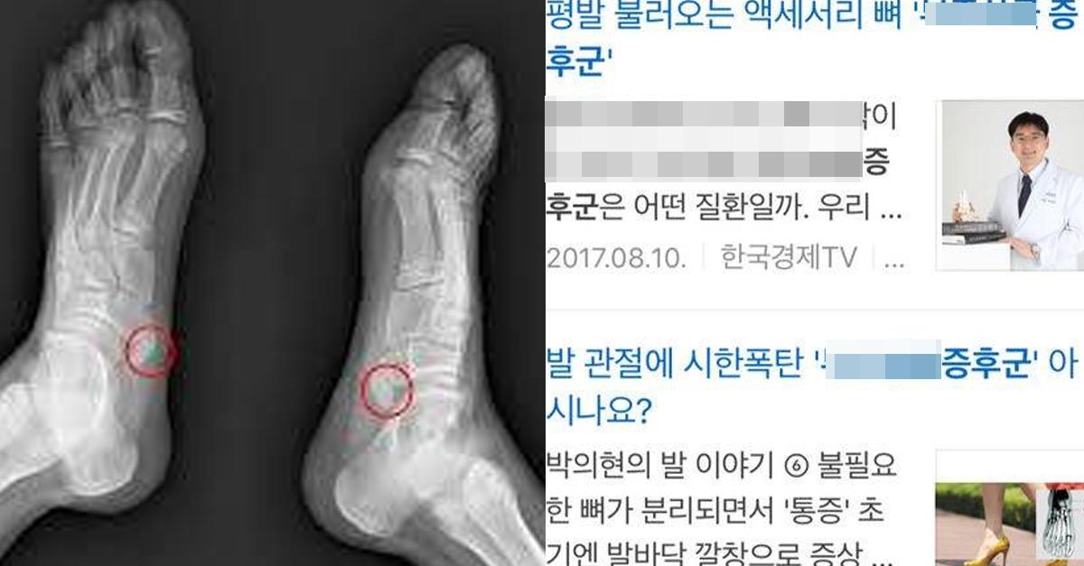 10명 중 단 '한 사람'만 가지고 있다는 발의 특이한 뼈