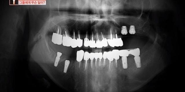 마취시켜놓고 앞니를...치과의사도 충격받은 어느 치과의 실태