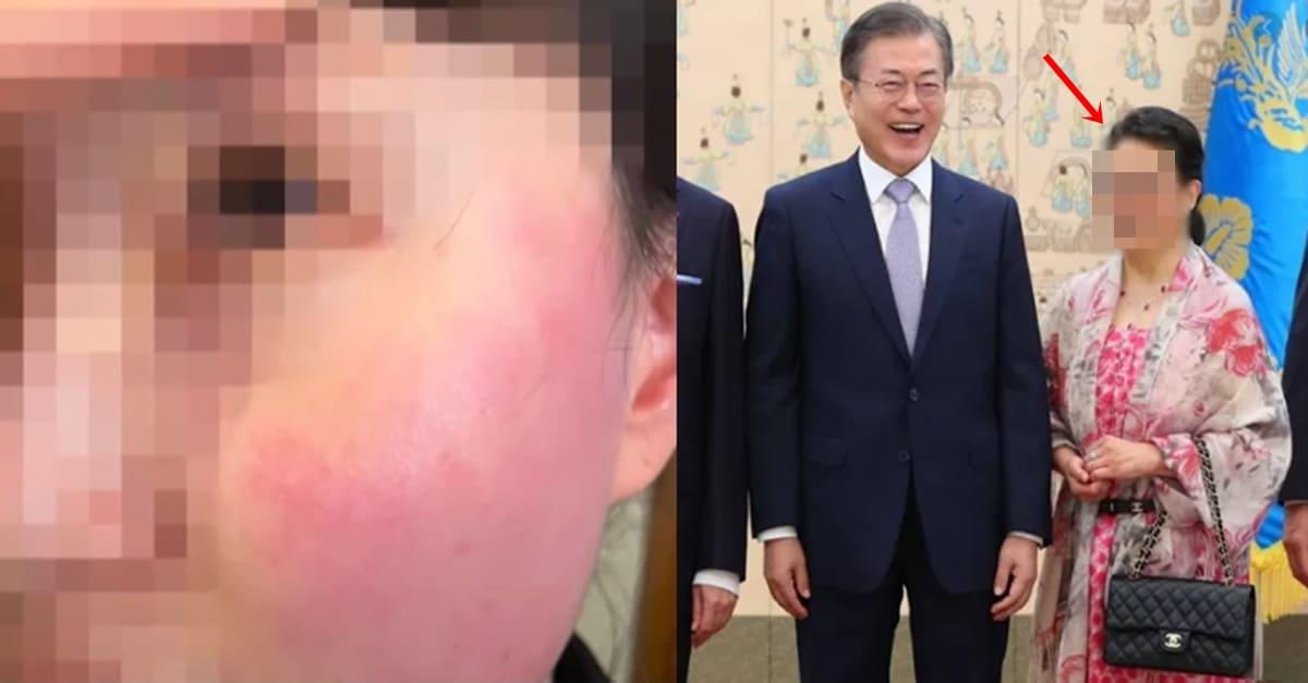 한국인 뺨때리고 머리 뜯은 중국인 처벌 못하는 이유