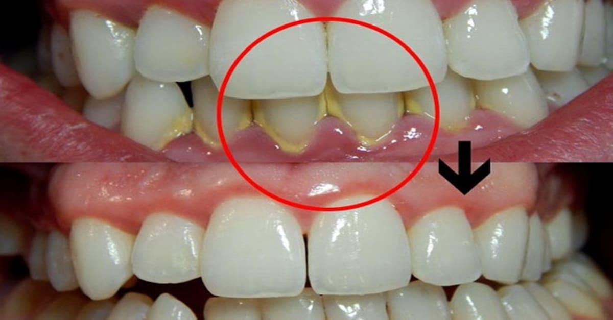 """""""치과 안 가도된다"""" 의외로 간단한 치석 제거하는 방법"""