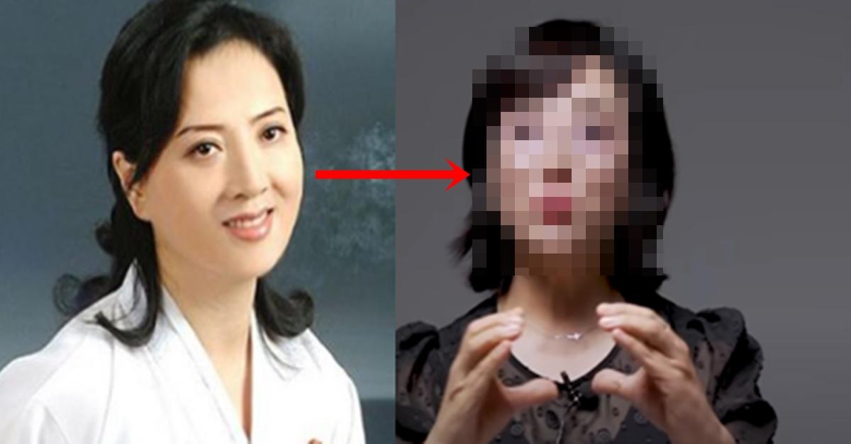 북한 여배우가 못생겨지는 성형수술을 받은 충격적인 이유